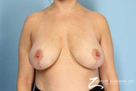 Breast Lift And Augmentation: Patient 8 - After Image