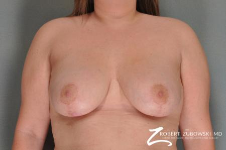 Breast Lift: Patient 13 - After Image