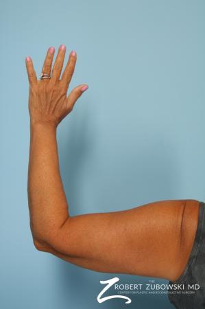 Arm Lift: Patient 5 - After Image 3