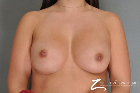 Breast Augmentation: Patient 17 - After Image