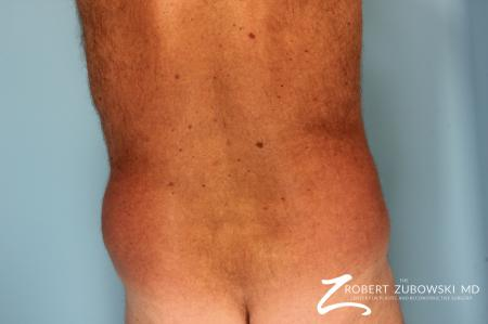 Liposuction: Patient 18 - Before and After Image 3