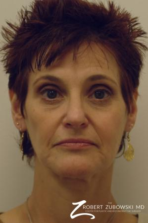 Facelift: Patient 9 - Before Image 1