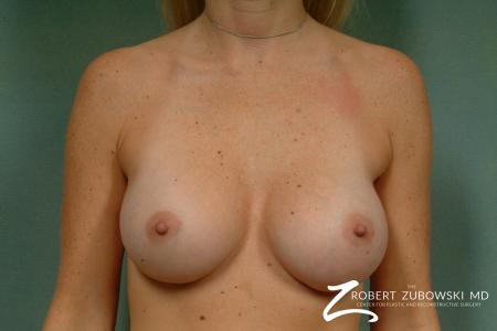 Breast Augmentation: Patient 16 - Before Image 1