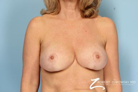Breast Reduction: Patient 24 - After Image