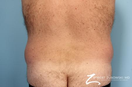 Liposuction: Patient 10 - Before Image