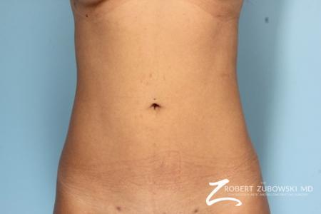 Liposuction: Patient 11 - After Image 1