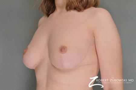 Breast Reduction: Patient 18 - After Image 2