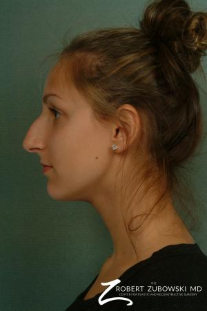 Rhinoplasty: Patient 11 - Before and After Image 2