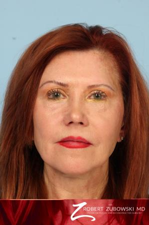 Facelift: Patient 29 - Before Image
