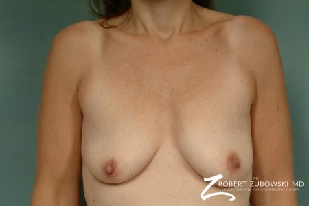 Breast Lift: Patient 14 - Before Image 1