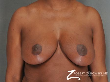 Breast Reduction: Patient 17 - After Image 1