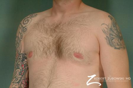 Gynecomastia: Patient 2 - After Image 2