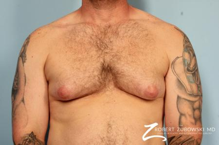 Gynecomastia: Patient 10 - Before Image