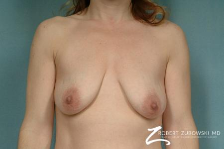 Breast Lift And Augmentation: Patient 14 - Before Image 1