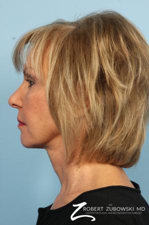 Facelift: Patient 3 - After Image 3