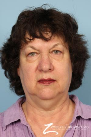 Facelift: Patient 19 - Before Image 1