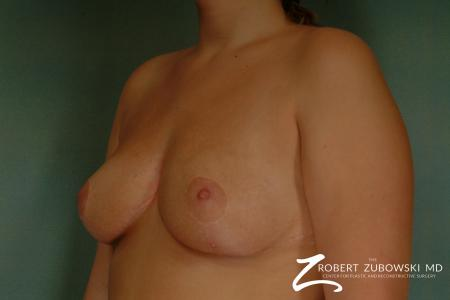 Breast Reduction: Patient 14 - After Image 2