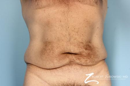 Body Lift: Patient 8 - Before Image 1