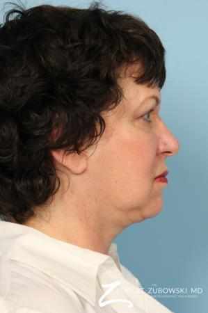 Facelift: Patient 19 - After Image 2