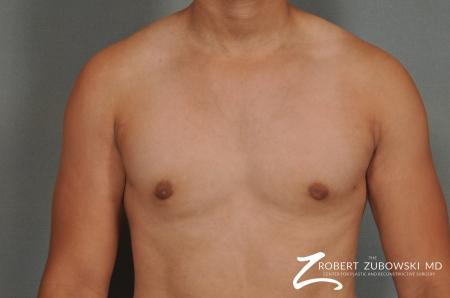 Gynecomastia: Patient 3 - After Image