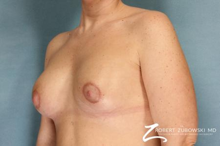 Breast Lift And Augmentation: Patient 11 - After Image 2