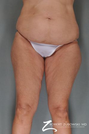 Body Lift: Patient 1 - Before Image