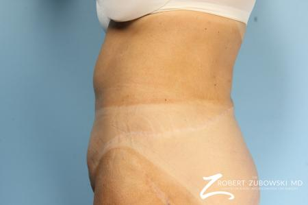 CoolSculpting®: Patient 2 - After Image 4