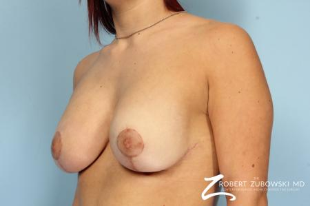 Breast Lift And Augmentation: Patient 18 - After Image 3