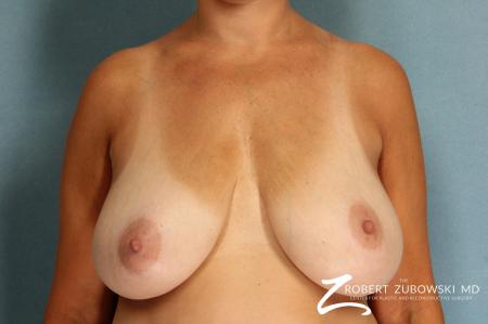 Breast Lift And Augmentation: Patient 8 - Before Image