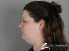 Liposuction: Patient 43 - Before Image