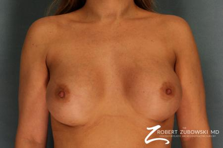 Breast Augmentation: Patient 13 - After Image 1