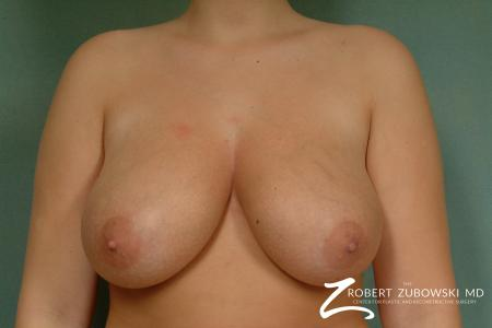 Breast Reduction: Patient 14 - Before Image