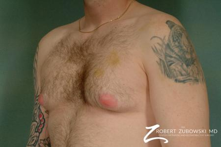 Gynecomastia: Patient 2 - Before and After Image 2
