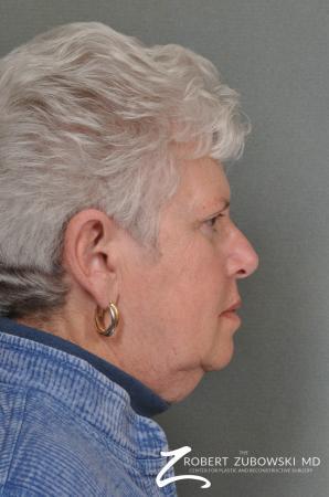 Blepharoplasty: Patient 24 - After Image 2