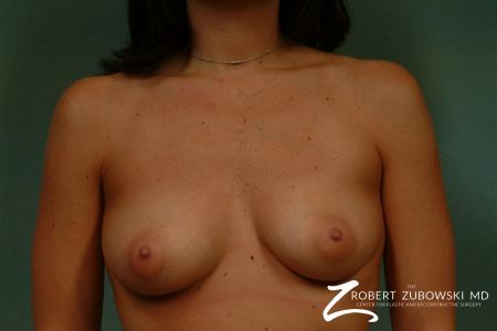 Breast Augmentation: Patient 29 - Before Image 1