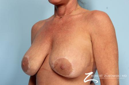 Breast Lift And Augmentation: Patient 17 - Before and After Image 2