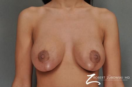 Breast Lift And Augmentation: Patient 7 - After Image