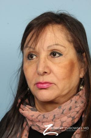 Brow Lift: Patient 9 - After Image 2