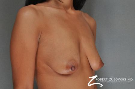 Breast Lift And Augmentation: Patient 7 - Before and After Image 2