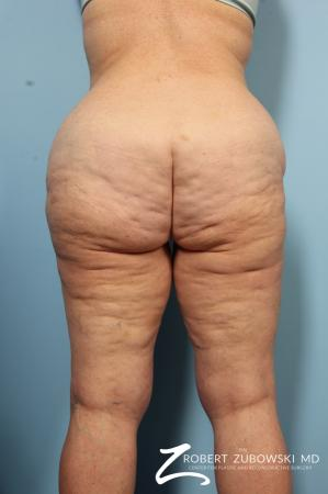 Body Lift: Patient 5 - Before and After Image 2