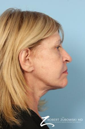 Facelift: Patient 23 - After Image 2