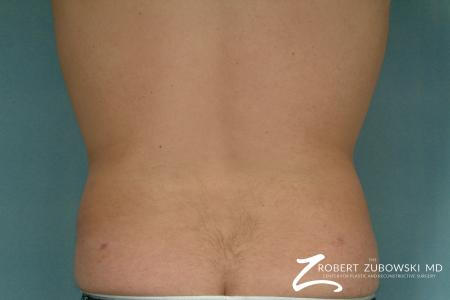 Liposuction: Patient 30 - After Image 2