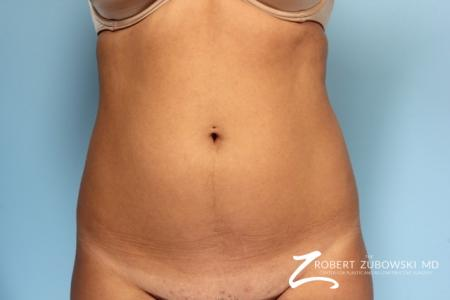 Liposuction: Patient 11 - Before Image