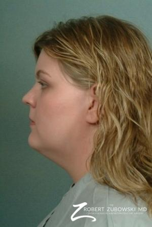 Liposuction: Patient 5 - Before and After Image 2
