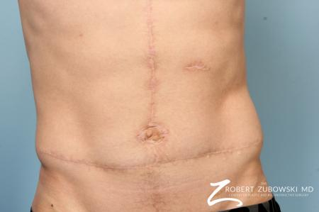 Scar Revision: Patient 2 - After Image