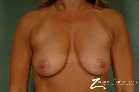 Breast Lift And Augmentation: Patient 4 - Before Image