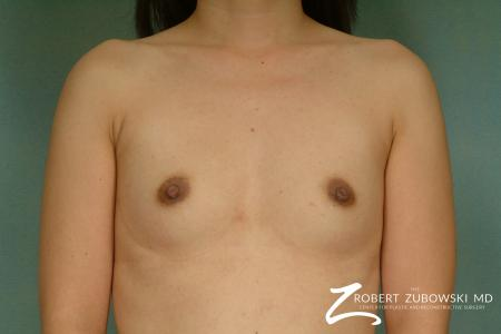 Breast Augmentation: Patient 25 - Before Image 1