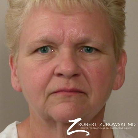 Facelift: Patient 14 - Before Image 1