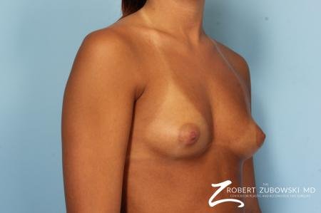 Breast Augmentation: Patient 34 - Before Image 2
