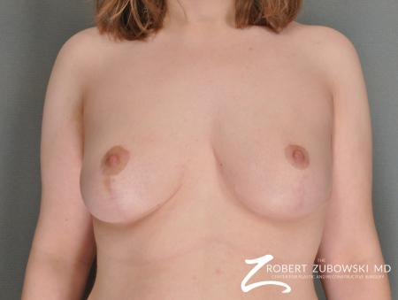 Breast Reduction: Patient 18 - After Image